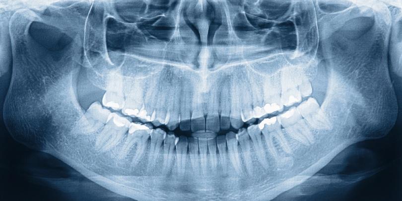 Amit a fogorvos szabad szemmel nem lát